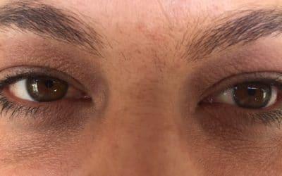 O que é bom para tirar olheiras?